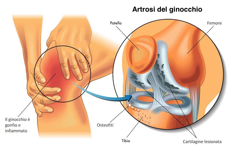 Come passare mrt a reparto cervicale