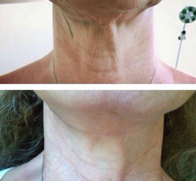 Lifting non chirurgico del collo