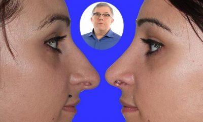 Rinoplastica ultrasonica, Fabio Meneghini
