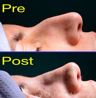 Rinoplastica ultrasonica
