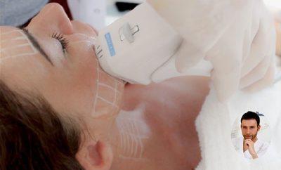Ulthera lifting non chirurgico con ultrasuoni microfocalizzati, Giacomo Urtis
