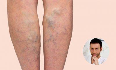 Tecniche di trattamento delle vene, Giacomo Urtis