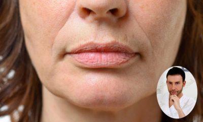 Giacomo Urtis, trattamento rughe naso labiali