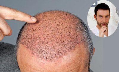 Auto-trapiano chirurgico dei capelli