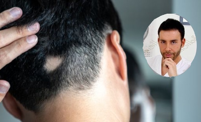 Alopecia Giacomo Urtis