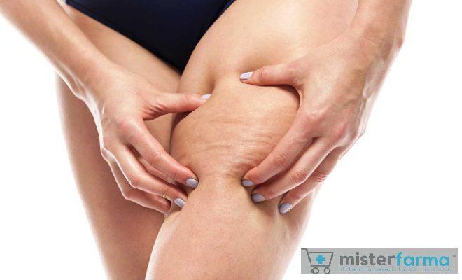 Cellulite Misterfarma