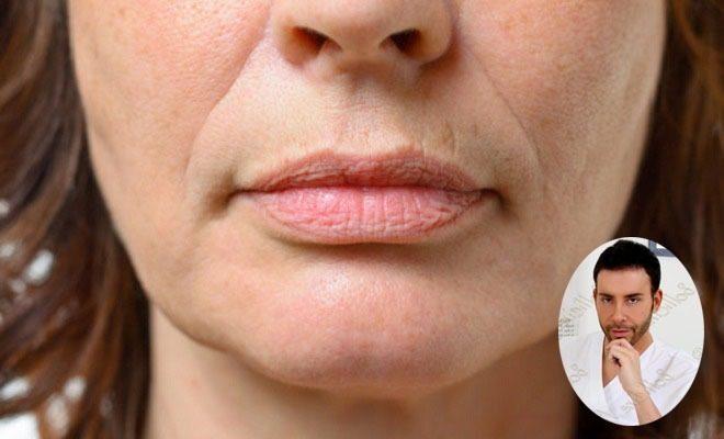 Filler viso antirughe